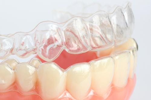 歯科医療用3Dプリンター市場が2024年に4億4000万ドル規模に成長