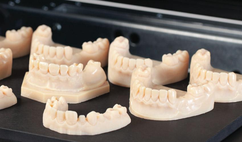 来年の歯科医療用3Dプリンティング市場が31億ドル規模に回復へ